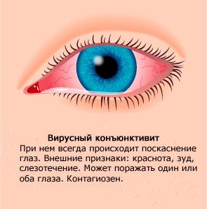 Покраснение глаз при коньюнктивите
