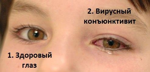 Вирусный коньюнктивит и здоровый глаз