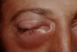 Непроходимость слезного канала