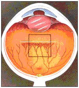 Как выглядит ретинопатия недоношенных