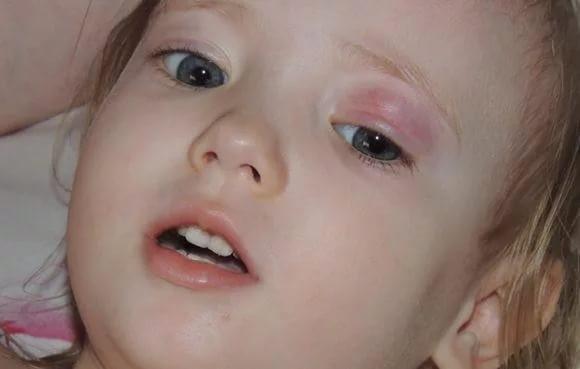 Халязион века у ребенка
