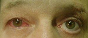 Увеит глаза у пожилого человека