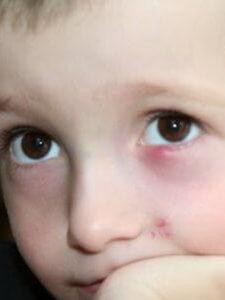 Фото маленького пациента