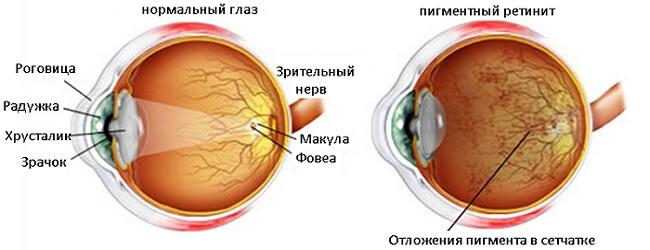 Нормальный и глаз и пигментный ретинит