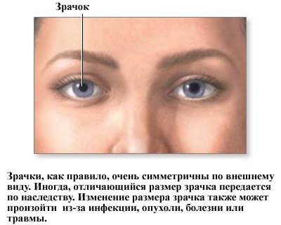 Что такое Анизокория