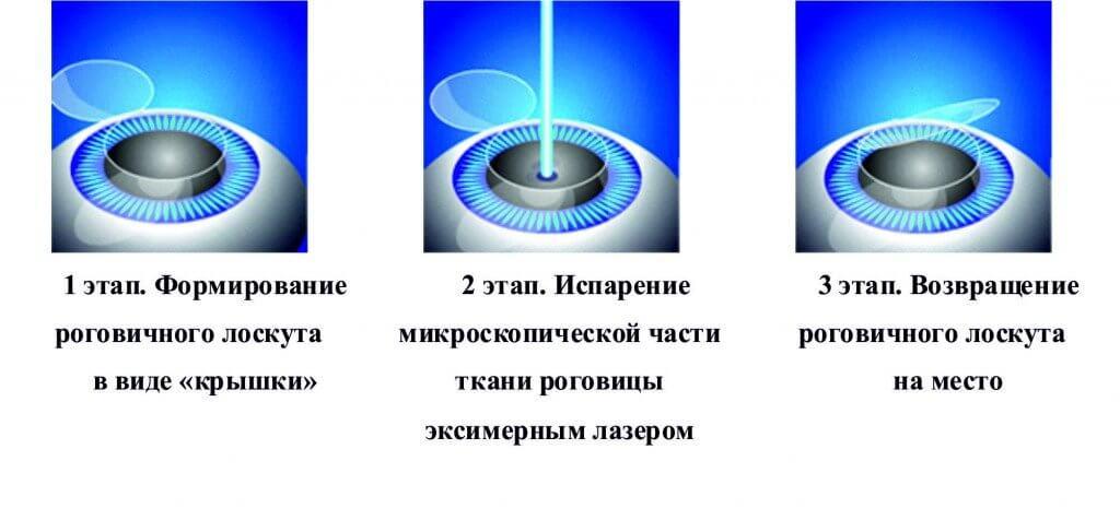Этапы лазерной коррекции