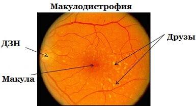 Что такое макулодистрофия