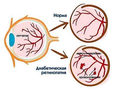Диабетическая ритинопатия