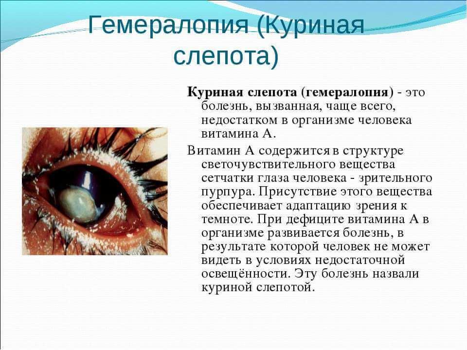 Что такое куриная слепота