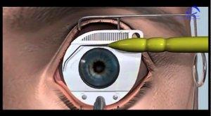Коррекция зрения методом СуперЛасик