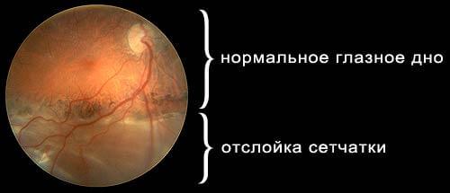 Состояние глазного дна при отслойки
