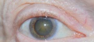 Мутные глаза у пожилого человека