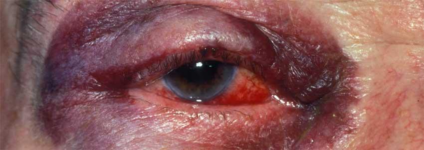 Механическая травма глаза