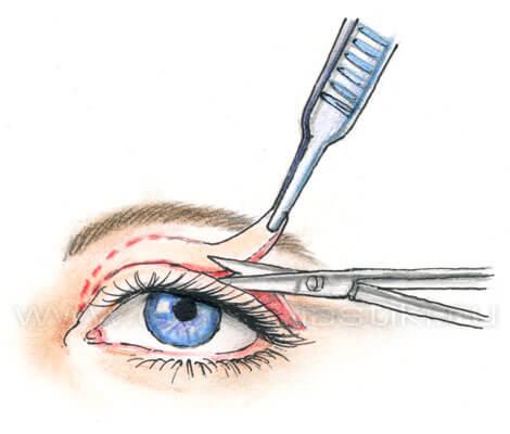 Лечение птоза хирургическим методом