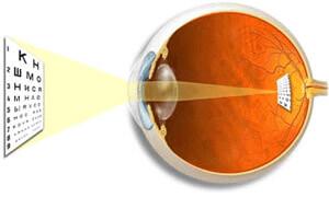 Определение рефракции глаз