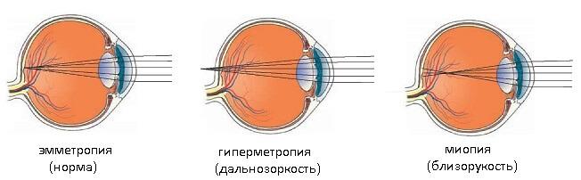 Виды рефракции глаза