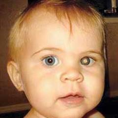 Ретинобластома у ребенка - фото