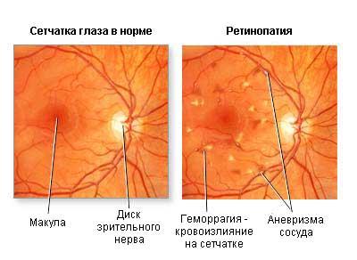 Норма сетчатки и ретинопатия