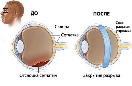 Оперирование при отслоении сетчатки