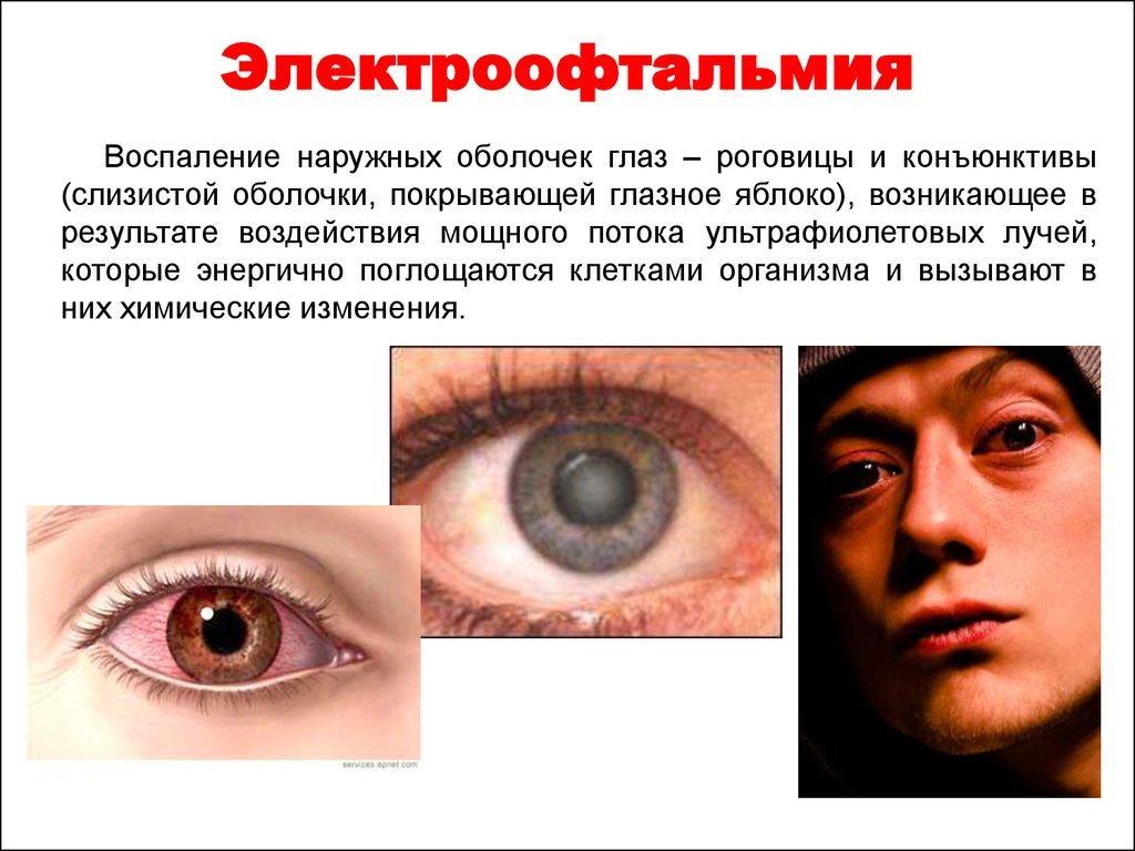 Электроофтальмия - повреждение конъюнктивы