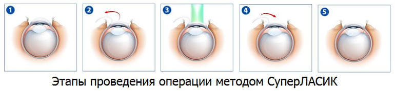 Этапы проведения операции СуперЛасик