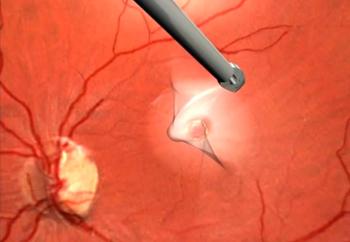 Микрохирургия глаза при разрыве макулы