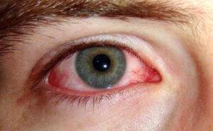 Аллергия глаз у пациента