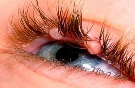 Контагиозный моллюск на глазах