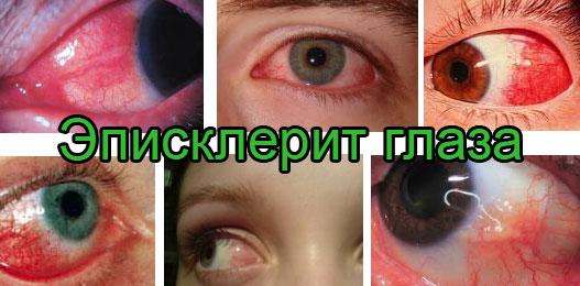 Как выглядит на фото эписклерит глаз