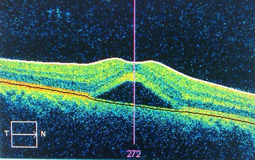 Оптическо когерентная томография