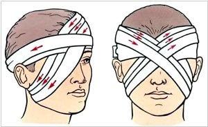 Правильность перебинтовывания глаза