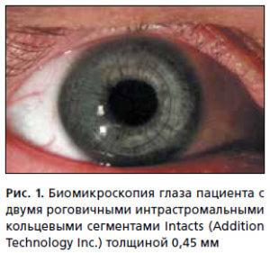 Биомикроскопия глаза пациента