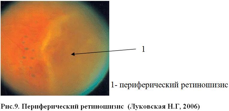 Периферический ретиношизис