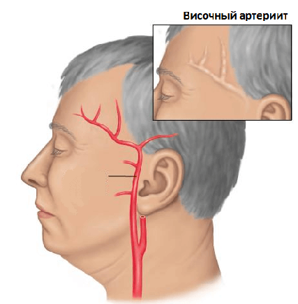 Височный артериит - схематичное изображение