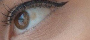 Желтое пятно на белке глаза
