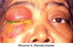 Панофтальмит у пациента