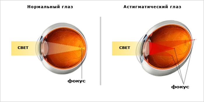 Разность фокусировки глаза при астигматизме