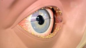 Схематичное изображение гноения глаза