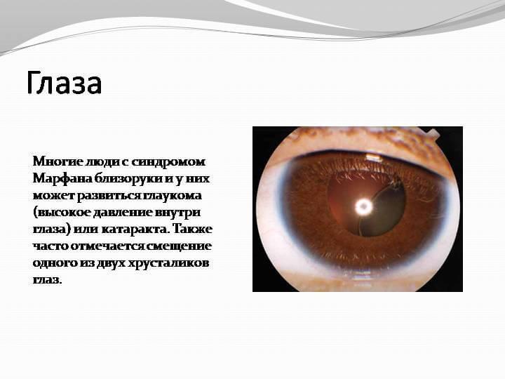 Синдром Марфана и зрение