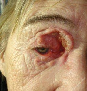 Базалиома глаза у пожилой женщины