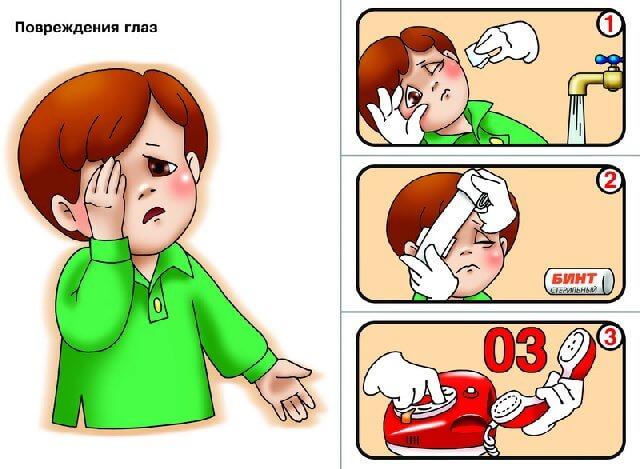 Какая необходима первая помощь при травме глаза
