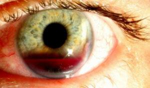 Наполнение глаза кровью