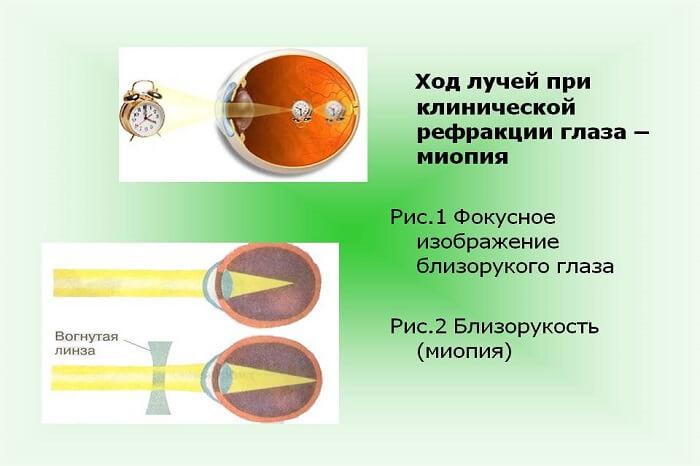 Ход лучей при рефракции глаз