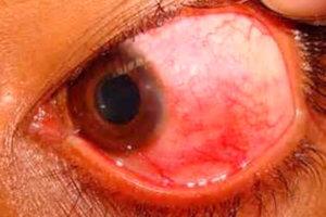 Как выглядит инфекция глаза