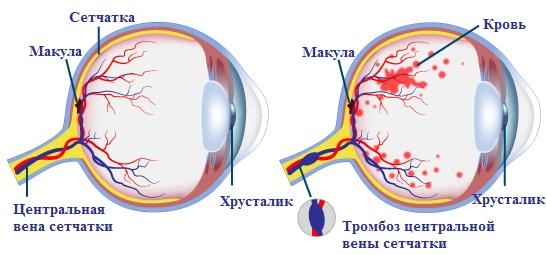 Тромбоз центральной вены сетчатки - схематичное изображение