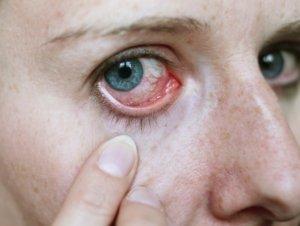 Чем вызвана боль в уголке глаза