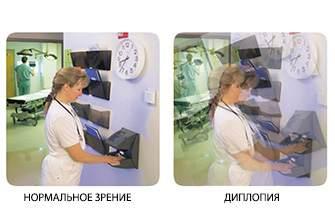 Нормальное зрение и диплопия