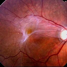 Эпиретинальная мембрана глаза под увеличением