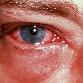 Воспаление глаза на фоне эрозии
