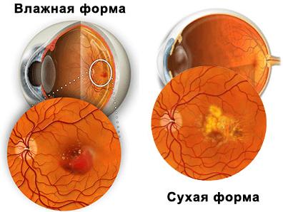 Влажная и сухая форма макулодистрофии